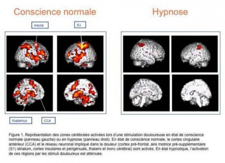 HYPNOSE-4
